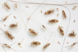 head lice pictures
